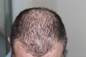 Chute de cheveux après accouchement : que faire pour l'éviter ?