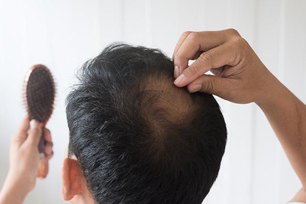 Les raisons de la chute des cheveux